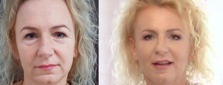 zabieg odmladzajacy na twarz - efekty przed i po