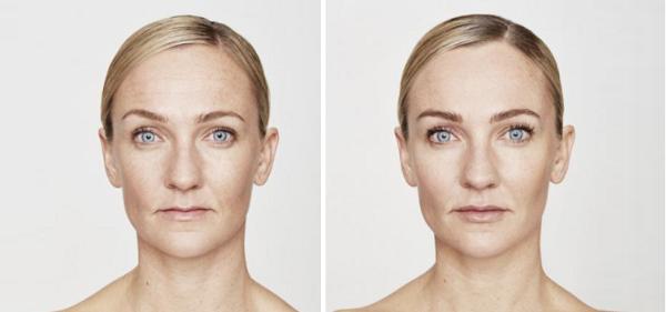 lifting skory twarzy - wroclaw